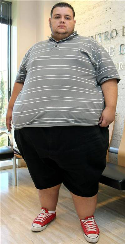stomach bypass patient of 41 stone is the fattest person in spain
