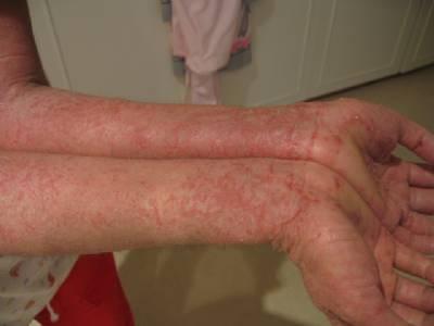 Dermatitis atopica en el pene